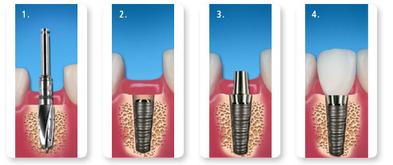 de4d94fc28 Implantate