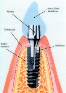 dentalux15 215x300 Implantate